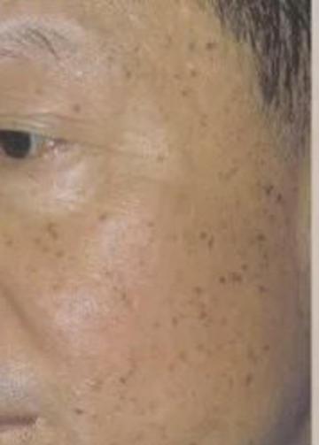 如何消除老年斑?