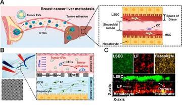 科学家开发了一种人肝脏微流控芯片用于研究细胞外囊泡在乳腺癌肝转移中的作用
